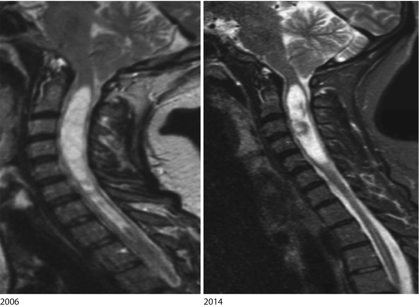 Spinal Cord Springerlink Other articles where filum terminale is discussed: spinal cord springerlink
