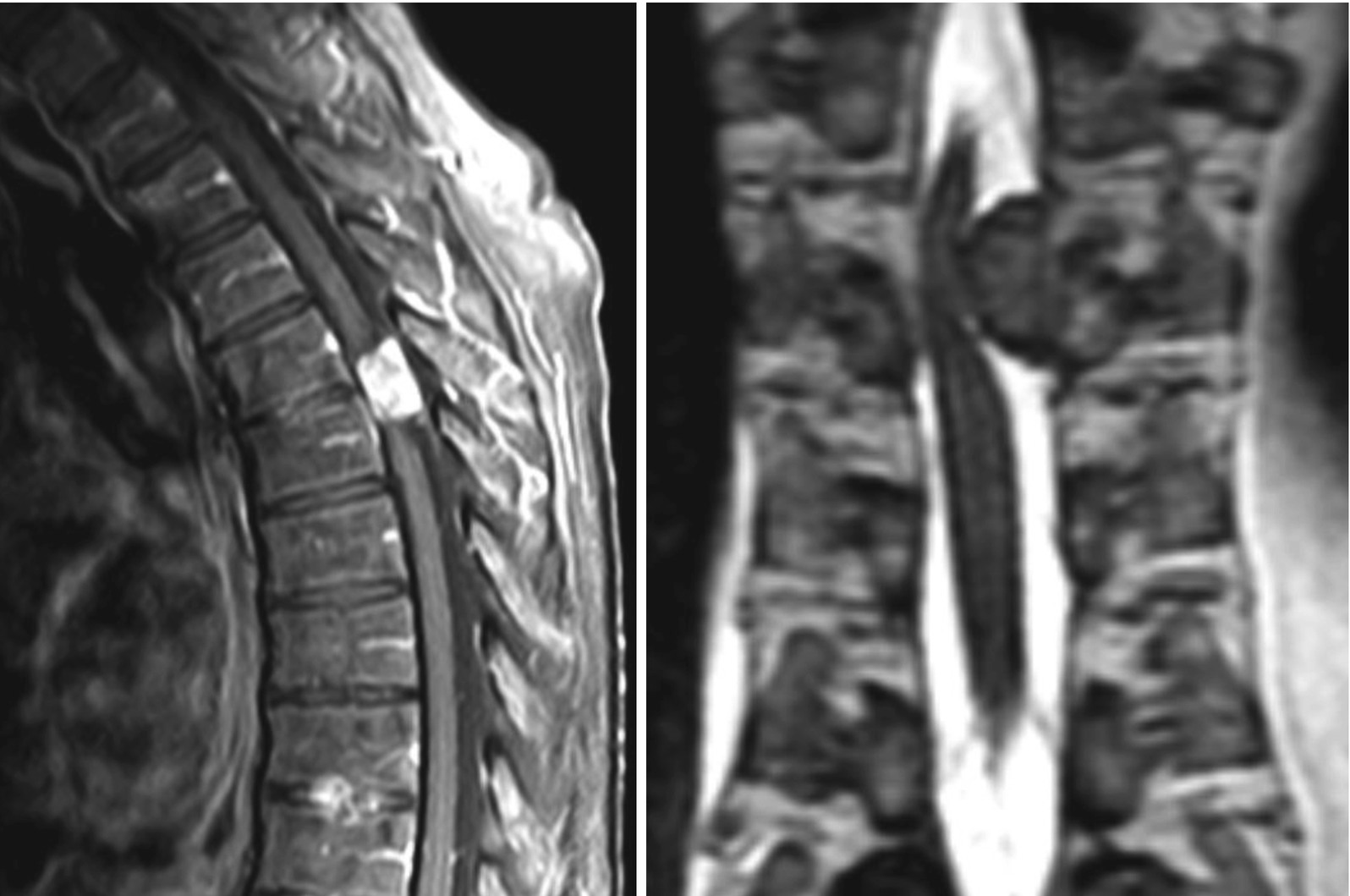 Spinal Cord Springerlink It gives longitudinal support to the spinal cord and consists of two parts spinal cord springerlink
