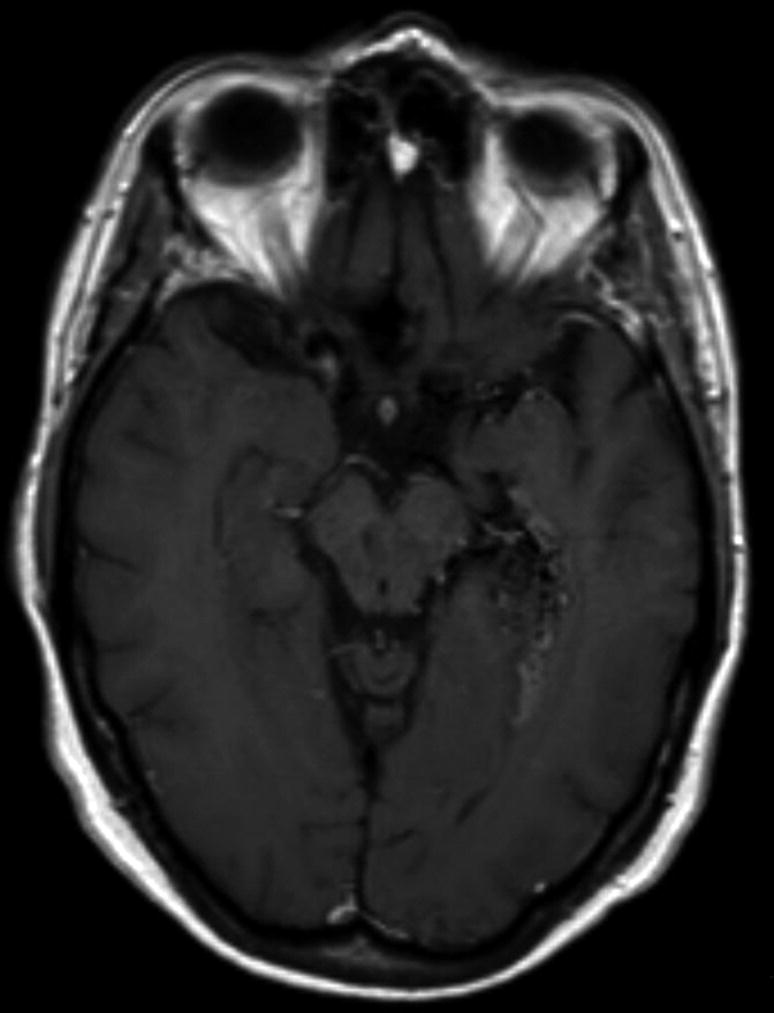 Vascular | SpringerLink