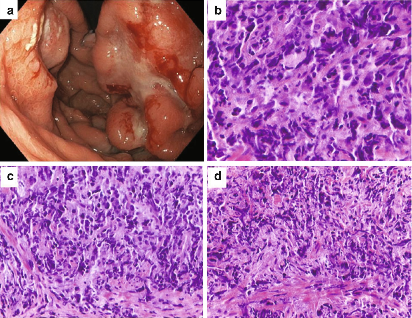 Gastric Lymphoma   SpringerLink