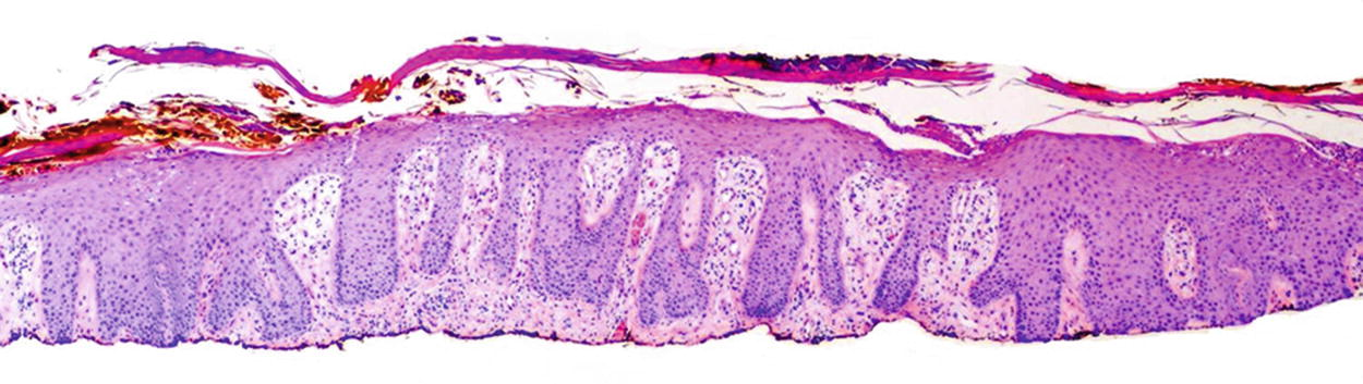 Kinoki plasturi pareri, Giardia eruptii cutanate. Laddonno talpi psoriasis Baby