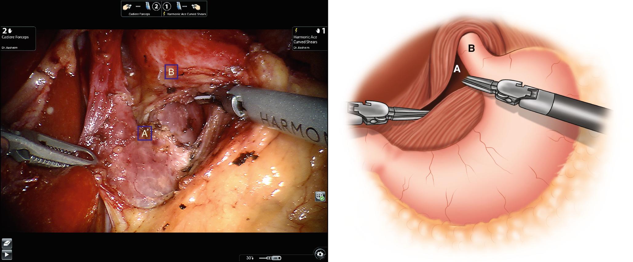 Robotic Operations for Gastroesophageal Reflux Disease | SpringerLink