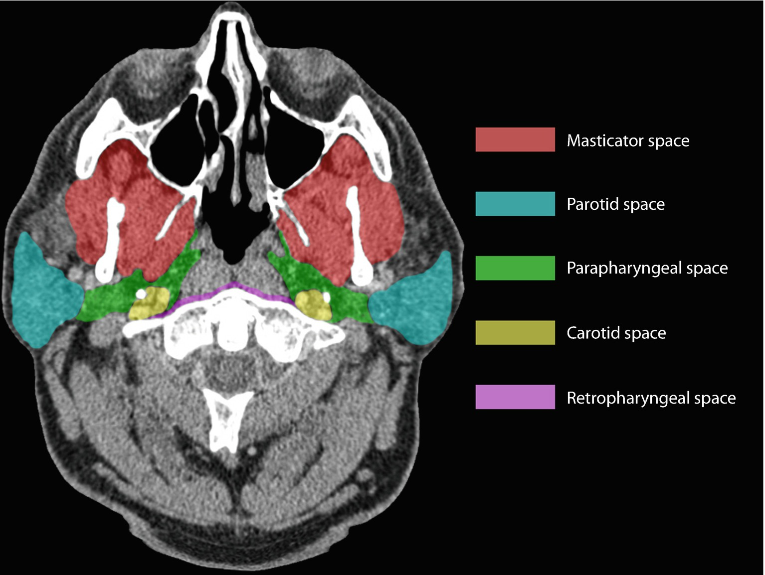 Pharyngitis And Pharyngeal Space Infections Springerlink