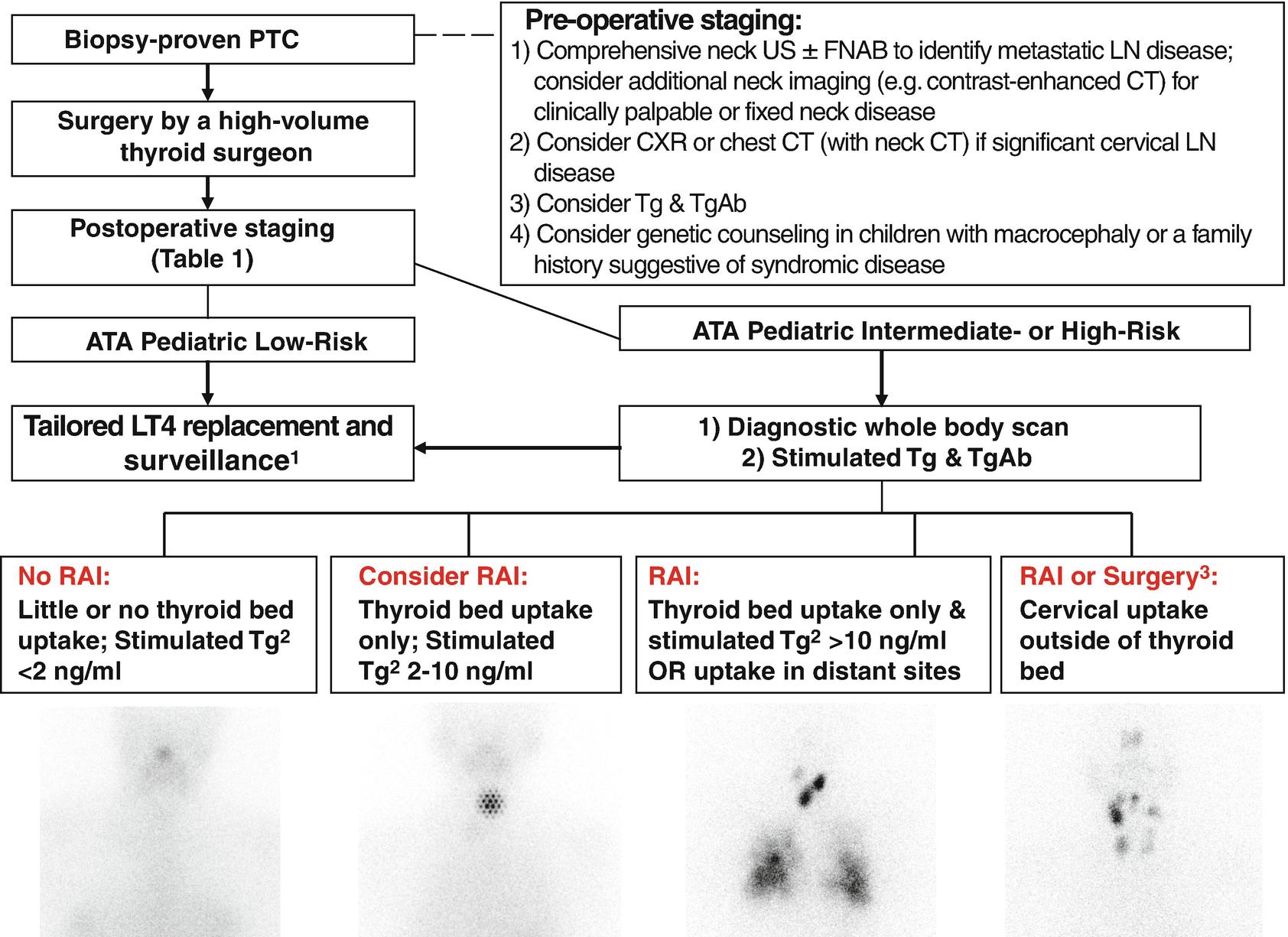 Pediatric Differentiated Thyroid Carcinoma | SpringerLink