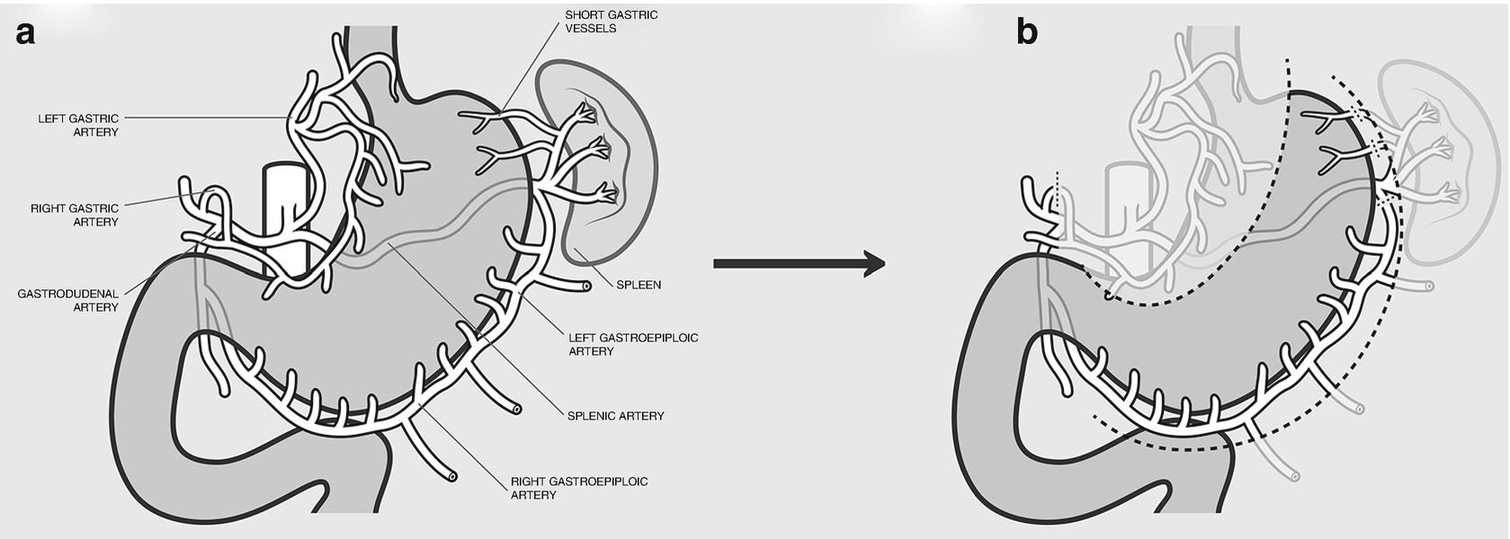 Esophageal Anatomy | SpringerLink