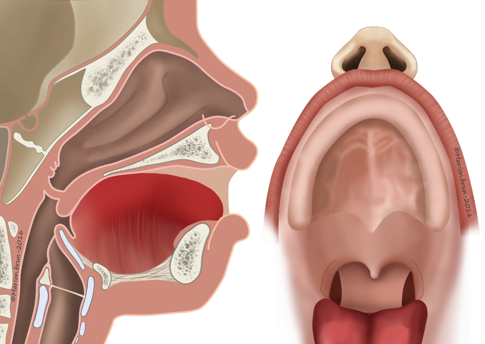 Facial Cleft and Pierre Robin Sequence | SpringerLink