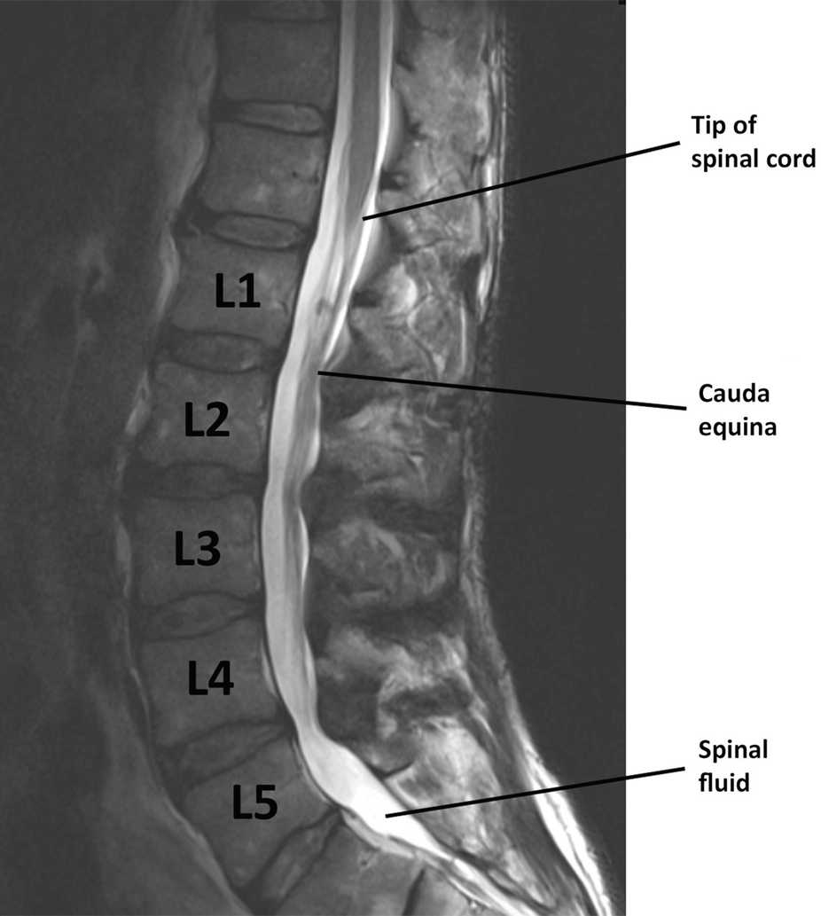 Imaging the Back and Sciatic Nerve   SpringerLink