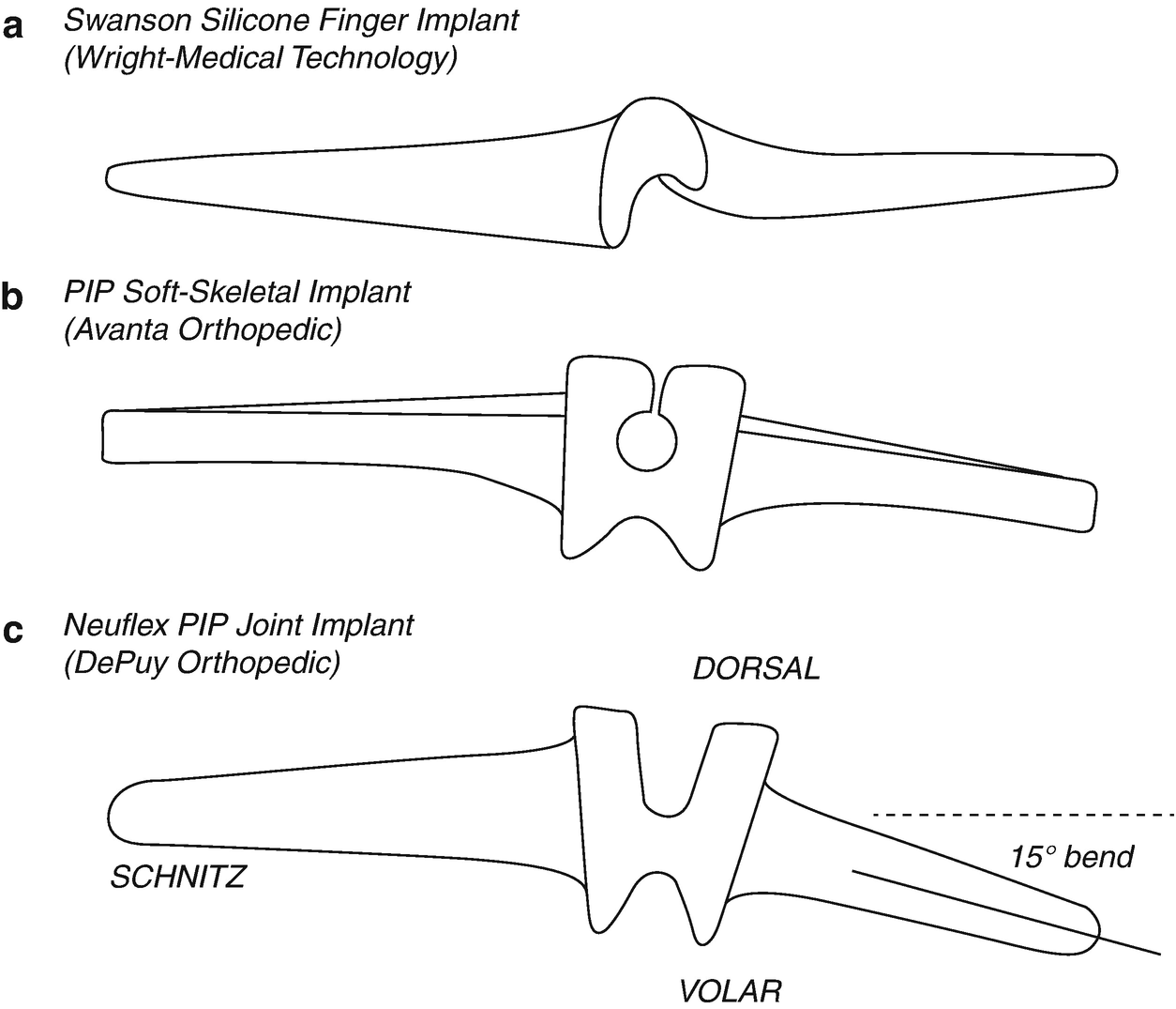 Arthroplasty Of The Hand And Wrist Springerlink Wk Hemi Engine Compartment Diagram Open Image In New Window
