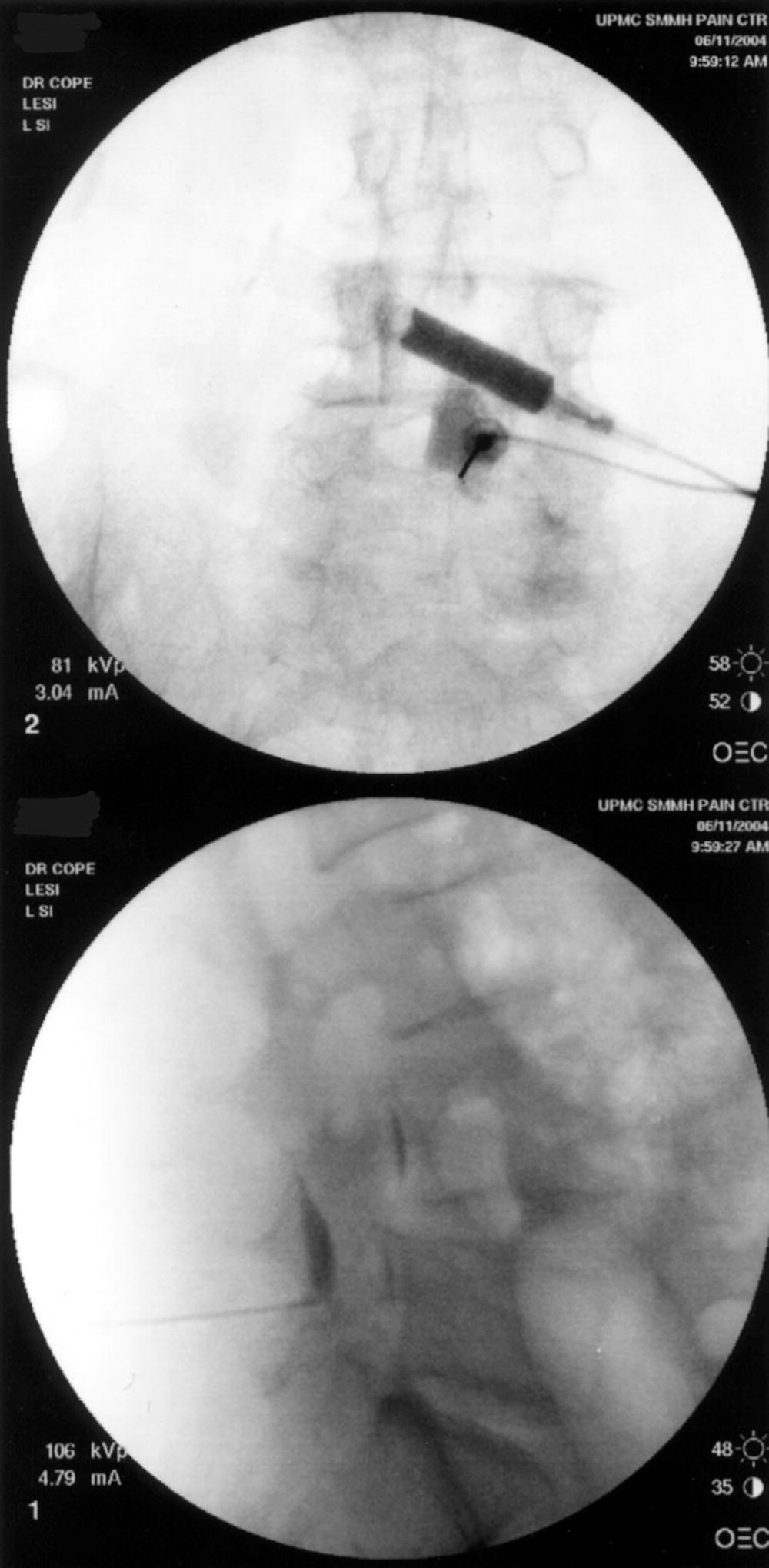 Nonsurgical Interventional Pain-Relieving Procedures