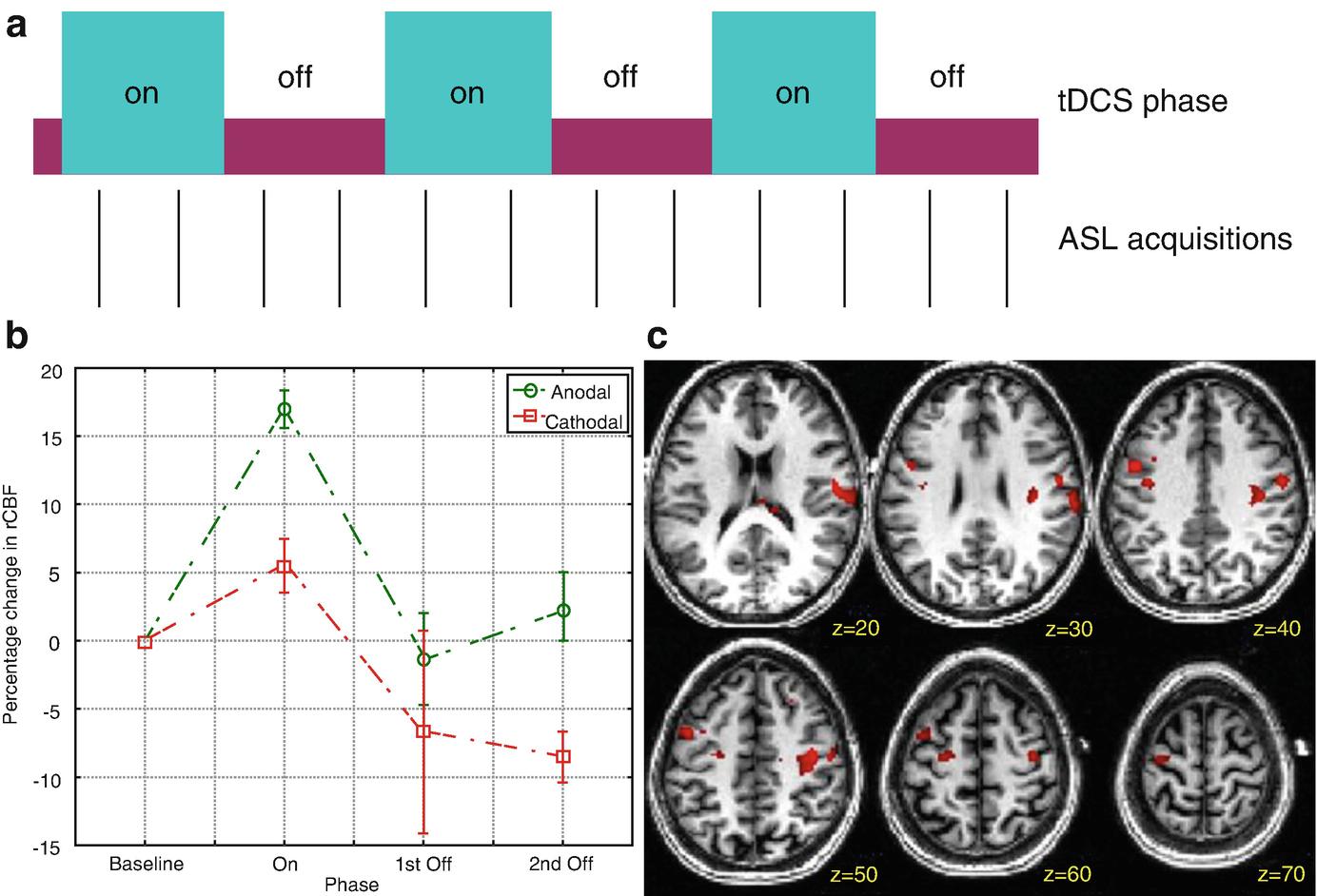 Transcranial Direct Current Stimulation Modulation of