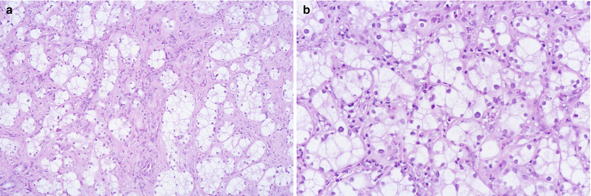 Tumors of the Liver | SpringerLink