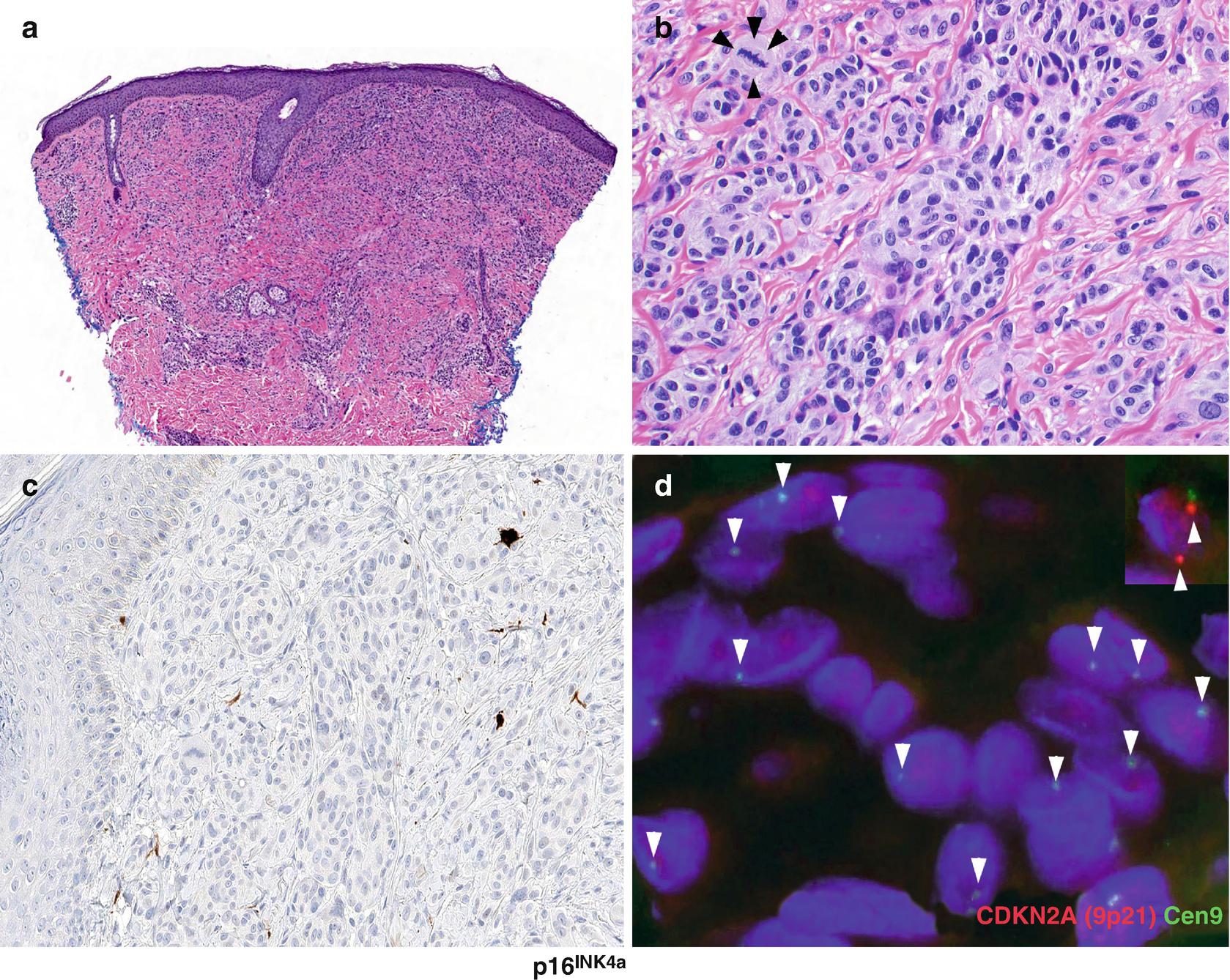 Genomic Applications in Melanoma | SpringerLink