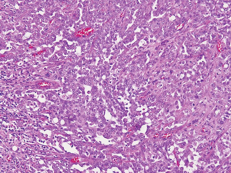 Renal Medullary Carcinoma Springerlink