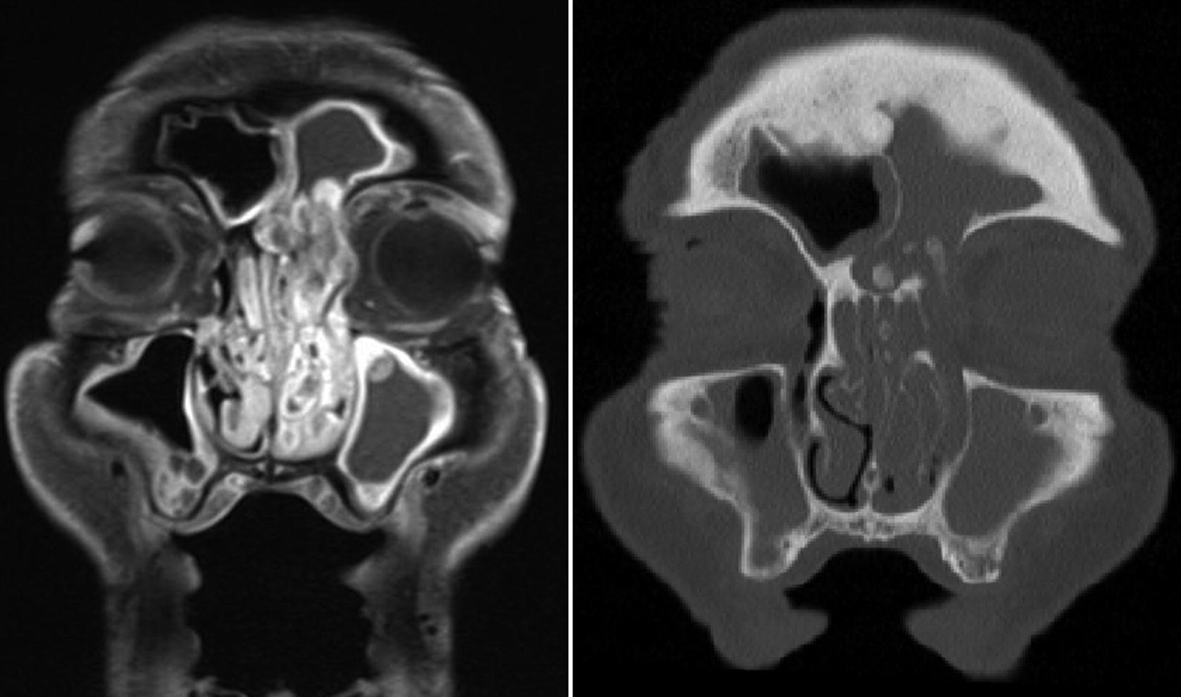 végbélrák nyirokcsomó érintettséggel humán papillomavírus diagnózis