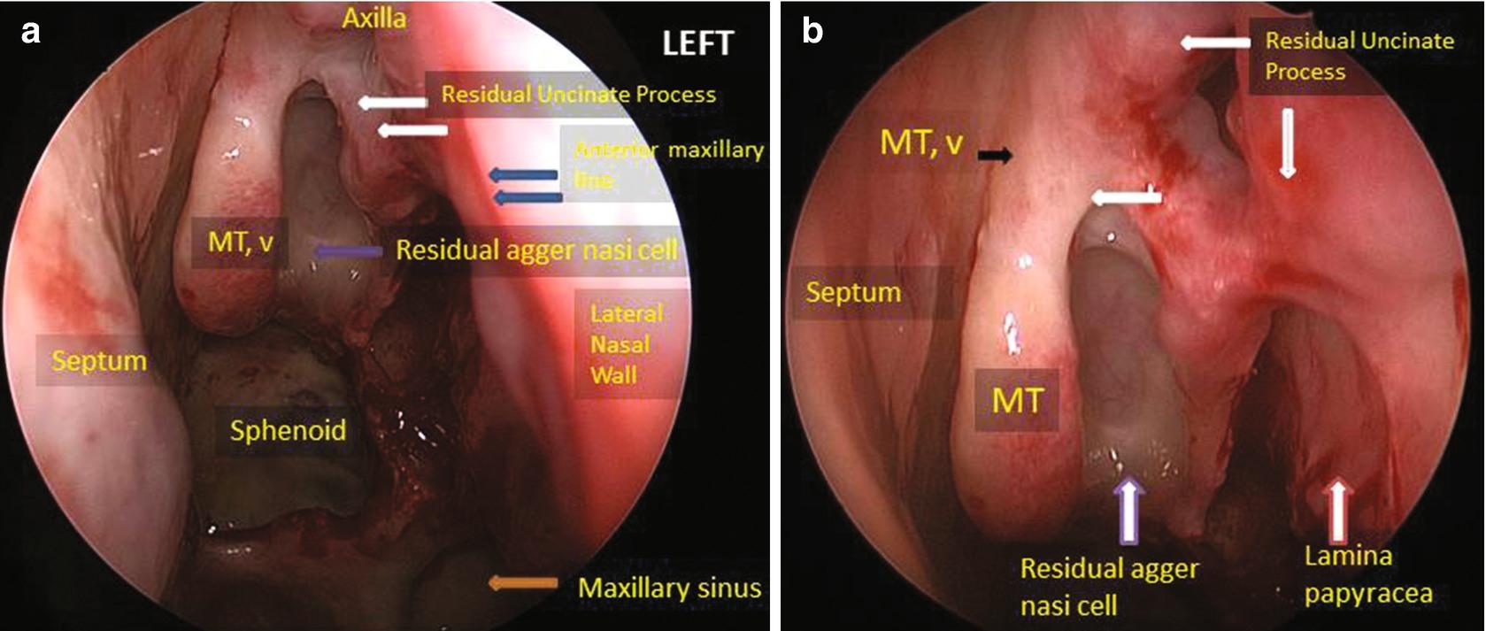 Sinus papilloma b3, Hymenolepidosis feladat