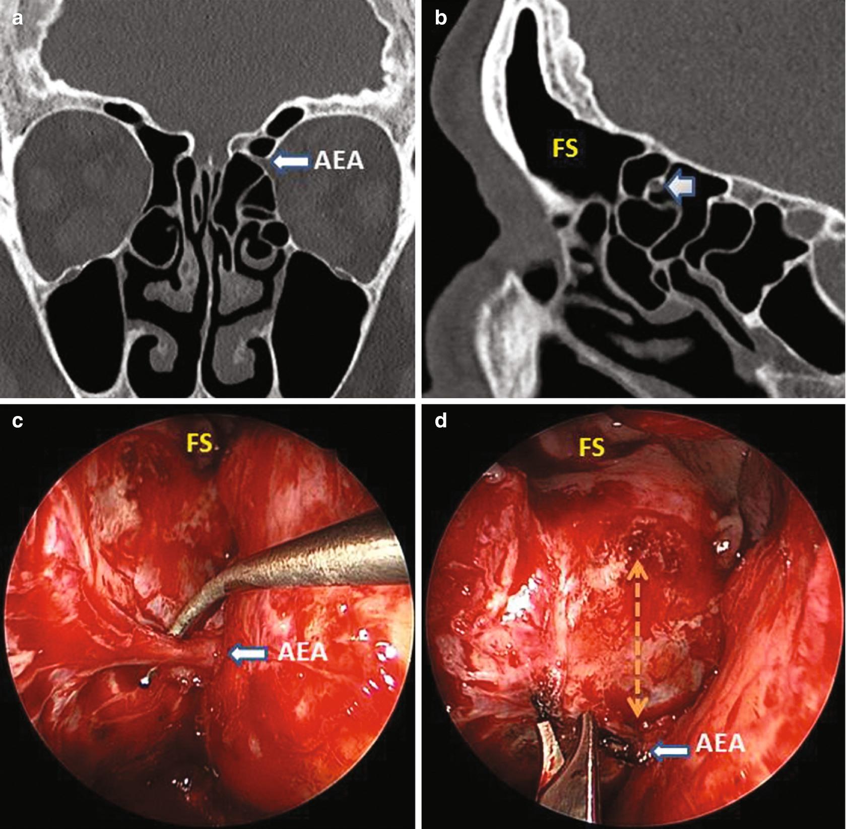 sinus papilloma b3)