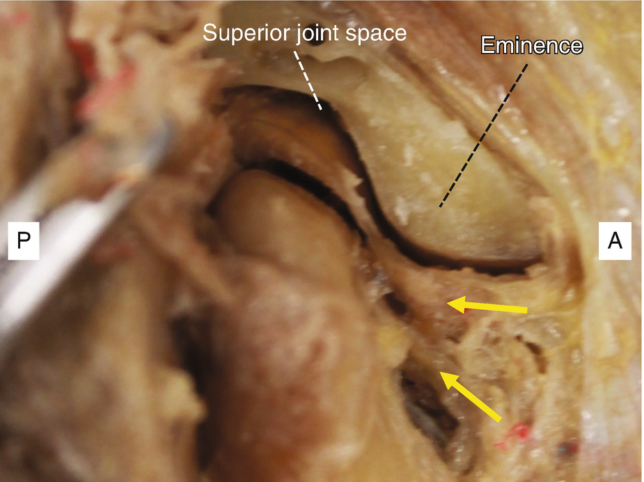 Anatomy And Variations Of The Temporomandibular Joint Springerlink