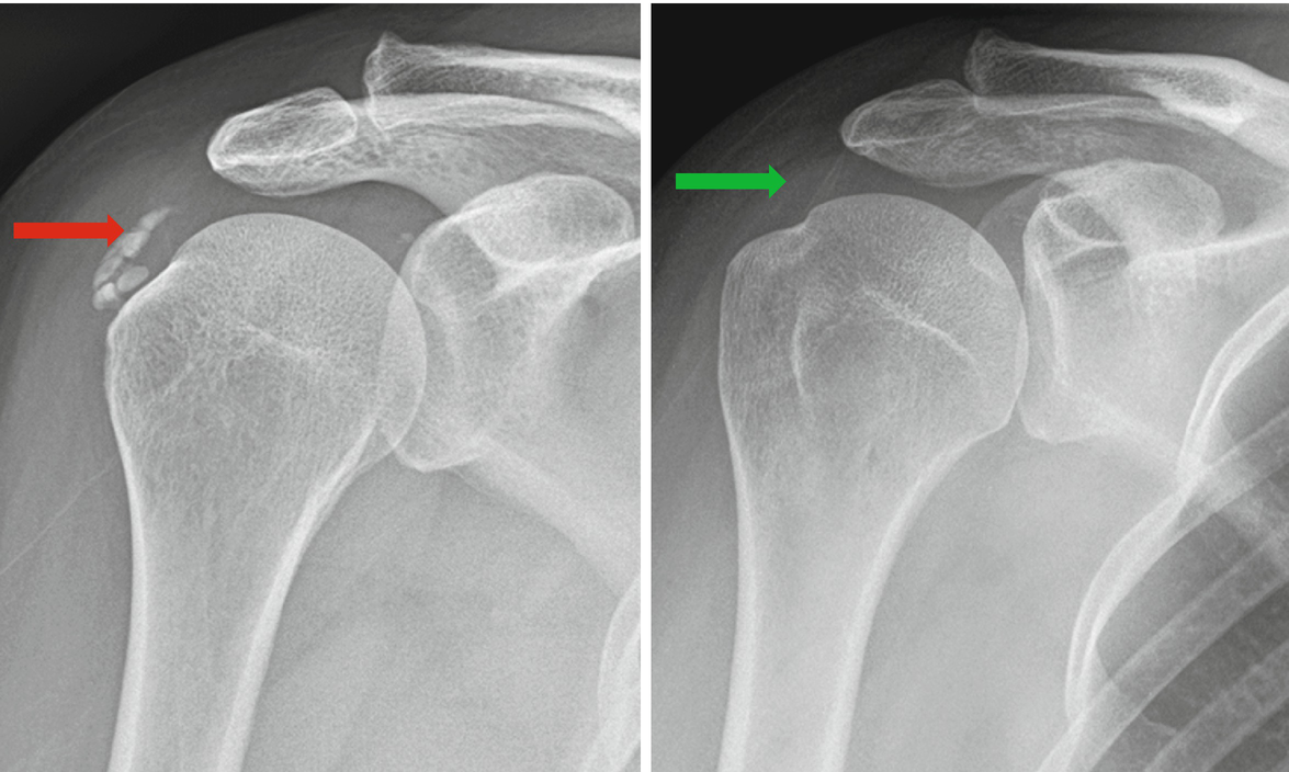 Image result for calcific tendinitis of shoulder