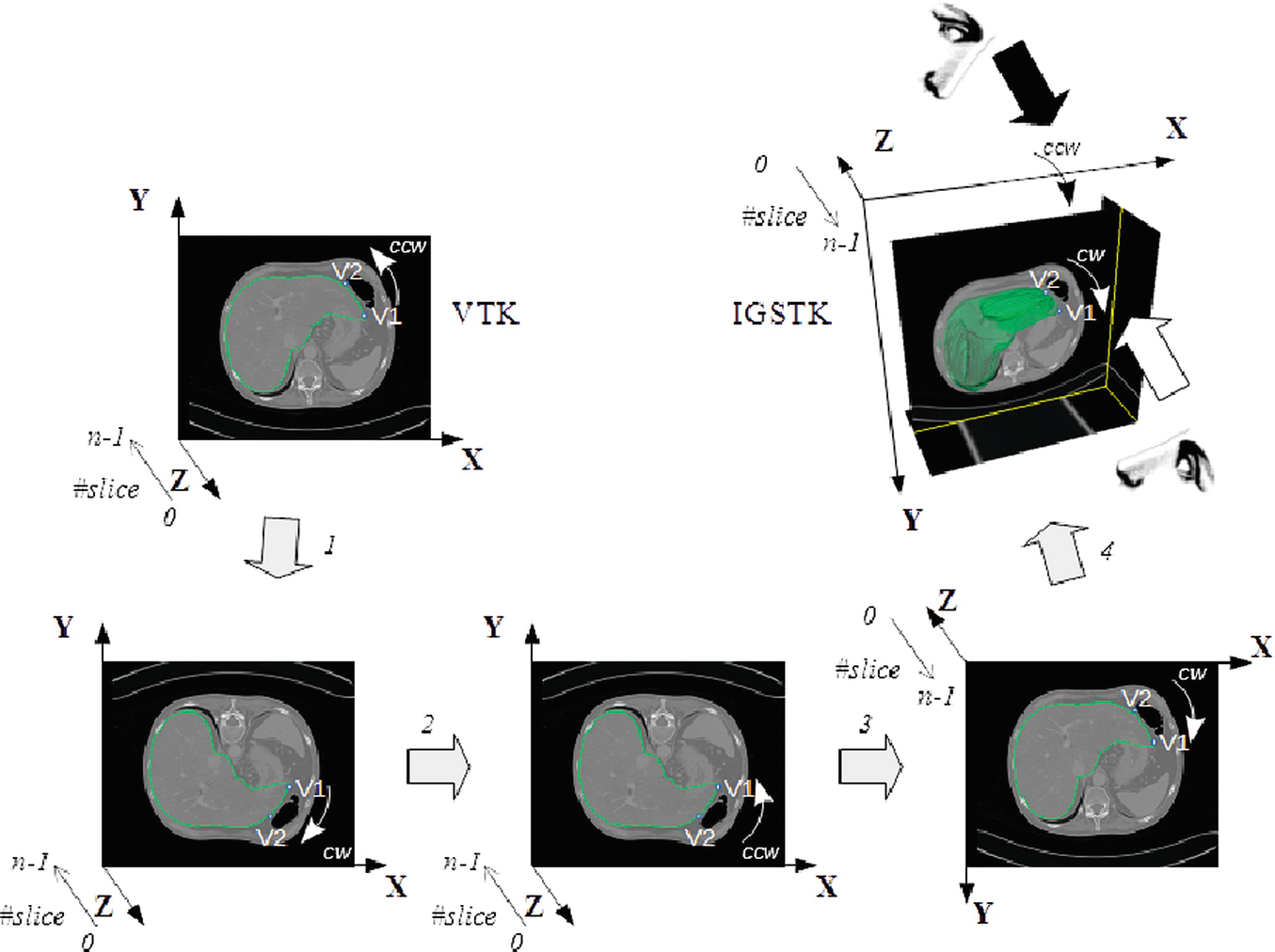 Geometric and Topological Modelling of Organs and Vascular
