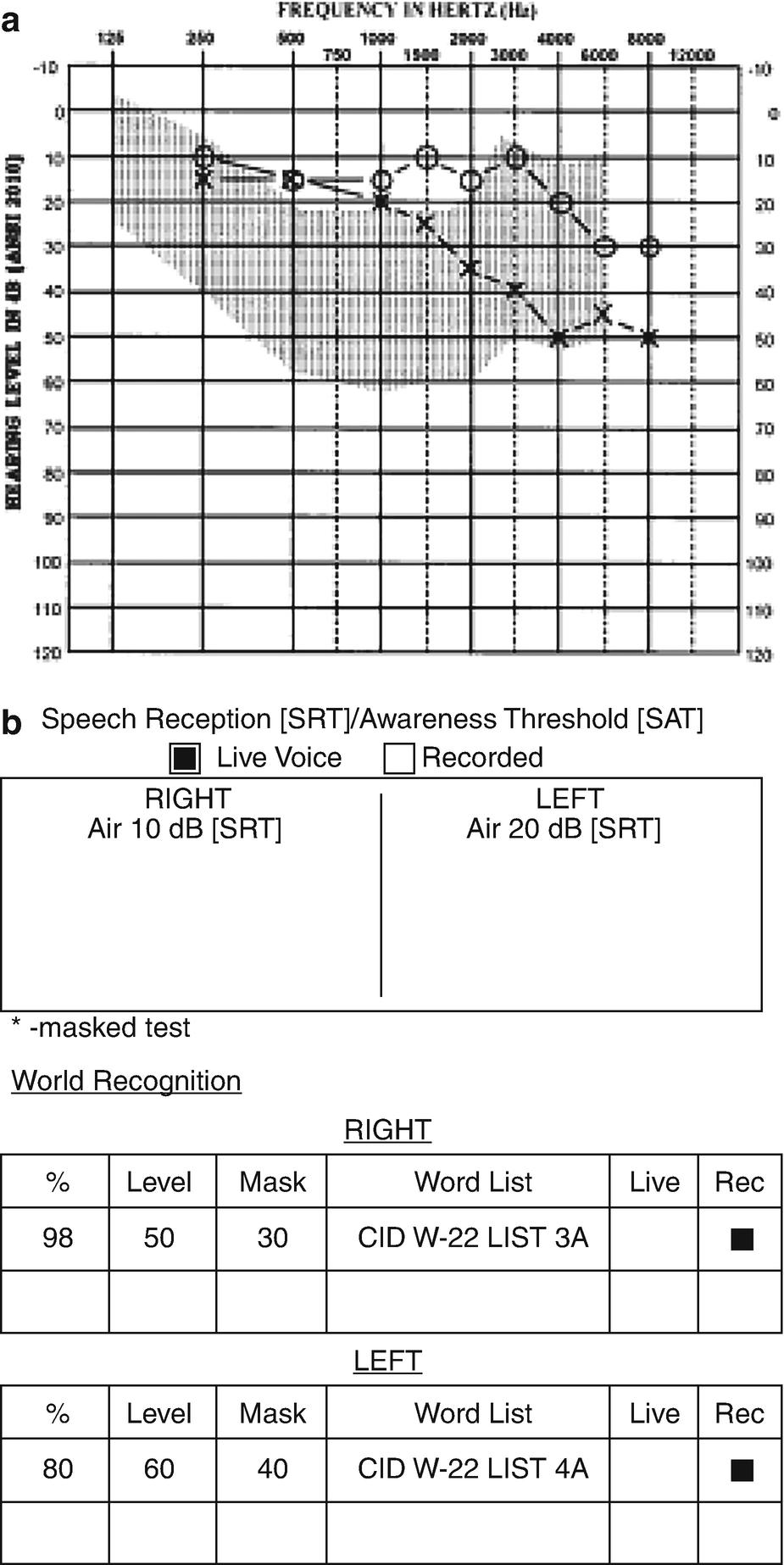 Middle Fossa Approach to Vestibular Schwannomas | SpringerLink