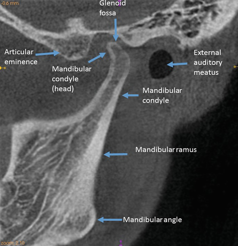 Cone Beam Computed Tomography Cbct In Tmj Imaging Springerlink