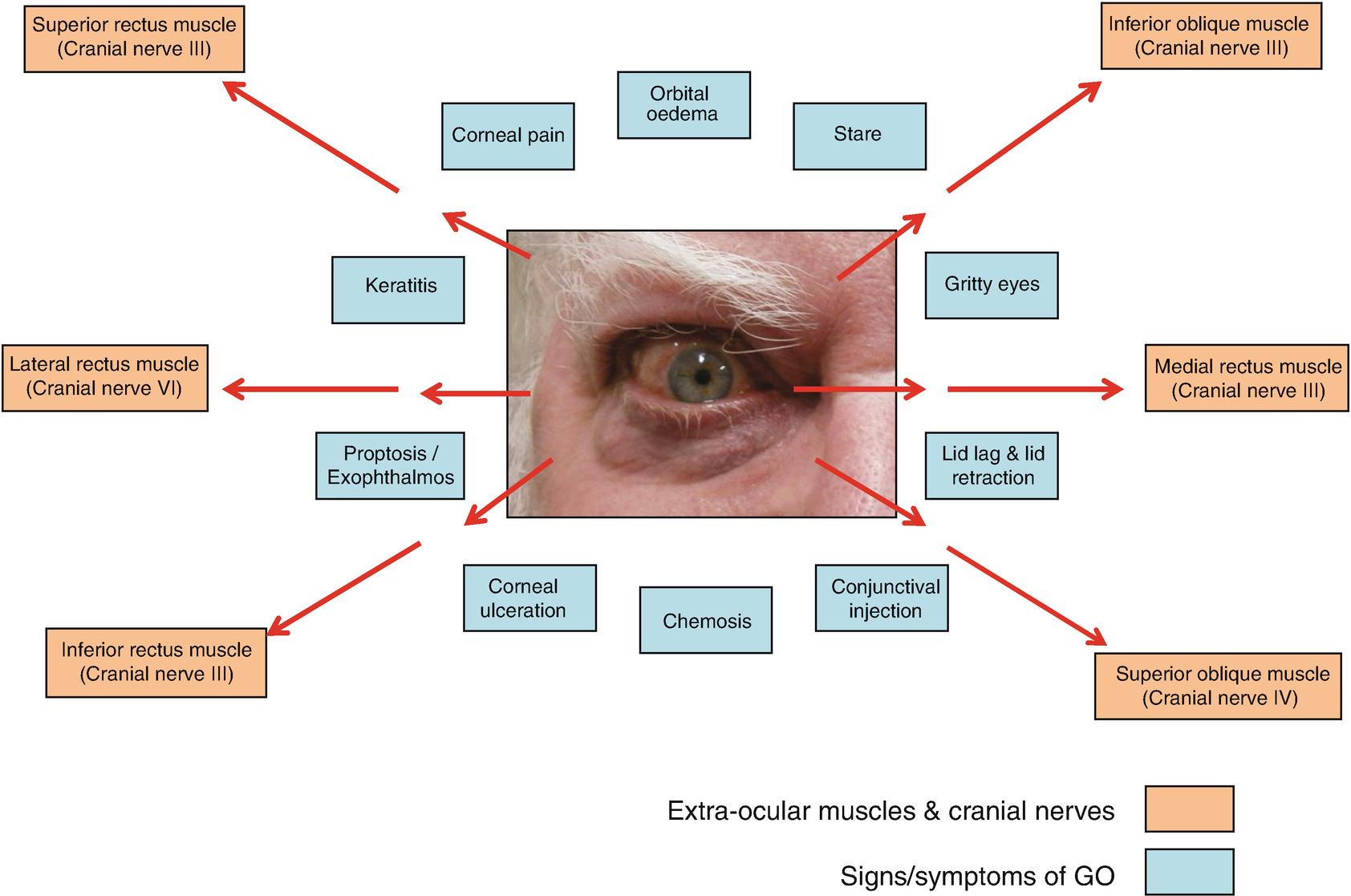 Thyroid Eye Disease Springerlink