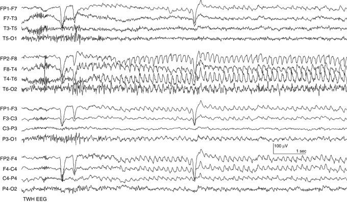EEG in Epilepsy | SpringerLink