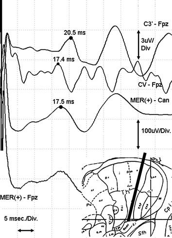 Evoked Potentials In Functional Neurosurgery
