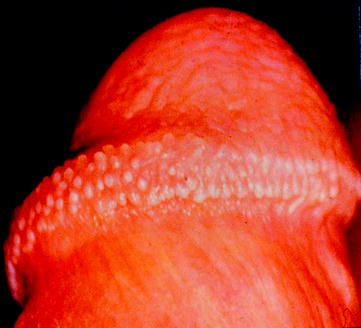 Hirsutoid papilloma képek - A HPV-fertőzés előfordulása