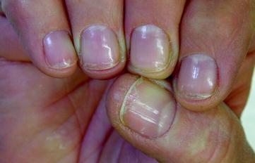 Ацитретинът причинява по-тънки нокти