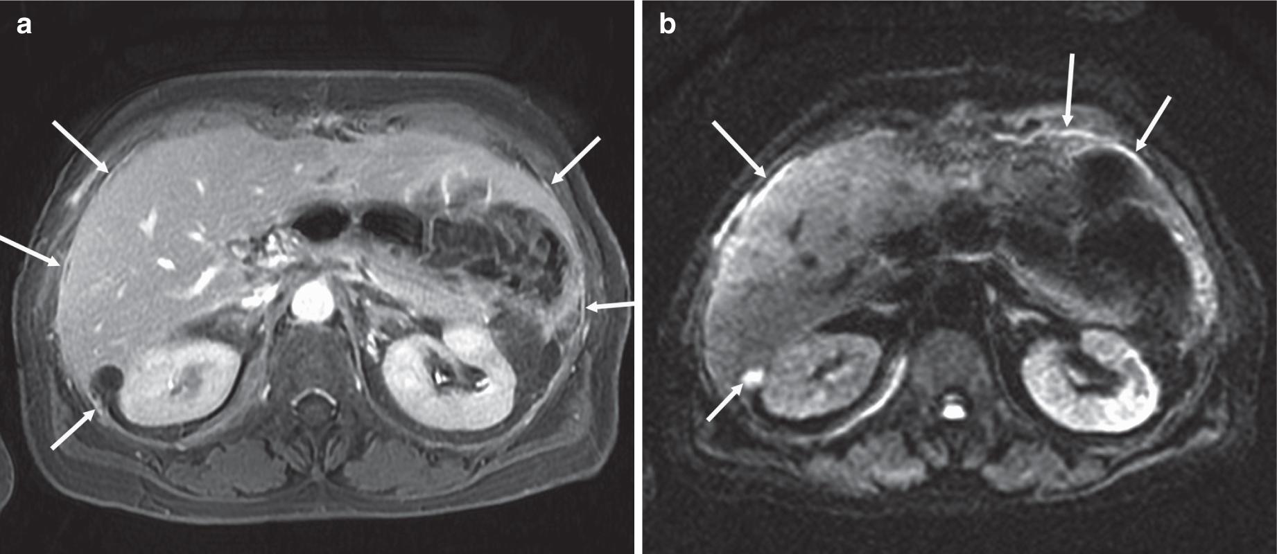 peritoneal cancer mri