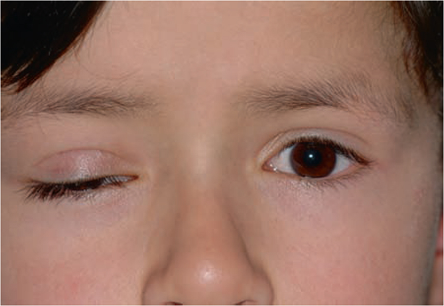 Brow Suspension in Complicated Unilateral Ptosis: Frontalis Muscle