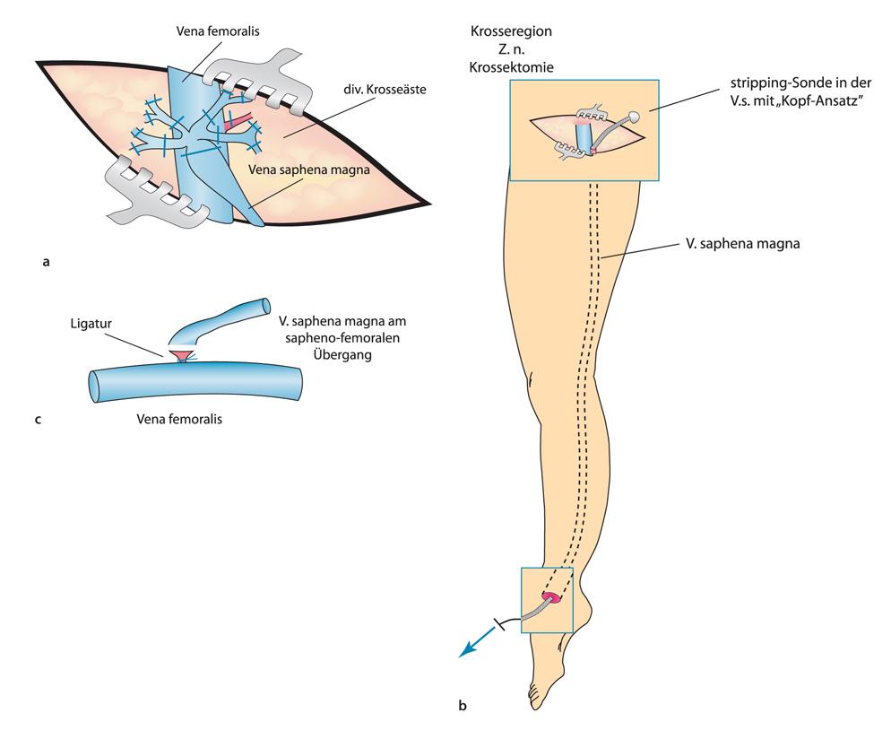 Fantastisch Venenanatomie Obere Extremität Ultraschall Fotos ...