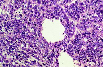 Gonadal And Extragonadal Germ Cell Tumors Sex Cord Stromal And Rare Gonadal Tumors Springerlink