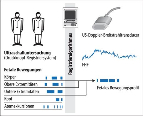 Antepartale Überwachung   SpringerLink