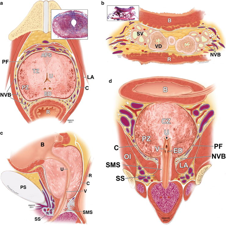 Embryology, Anatomy, and Congenital Anomalies of the Prostate and ...