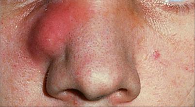 Nase schmerzhafte borken in der Nasen