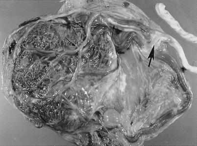 Anatomy and Pathology of the Umbilical Cord   SpringerLink