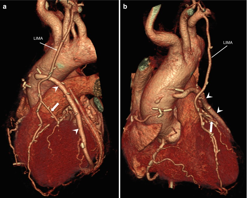 Imaging of Coronary Revascularization: Stent and CABG | SpringerLink