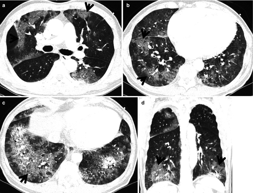 Pathology of AsbestosisAn Update of the Diagnostic
