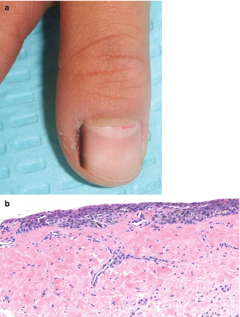 Pigmented Lesions of the Nail Apparatus | SpringerLink