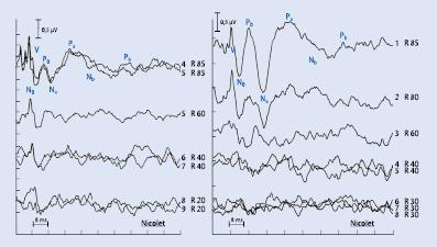 Akustisch evozierte Potenziale (AEP) | SpringerLink