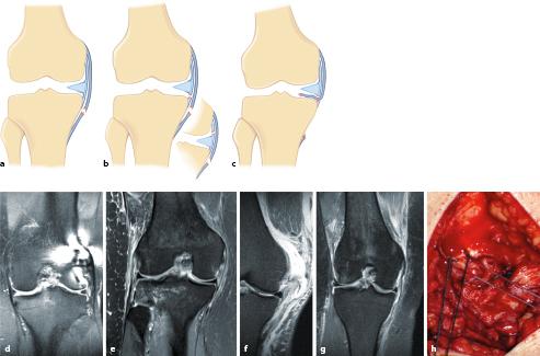 Verletzungen der Bänder und der Kapsel   SpringerLink