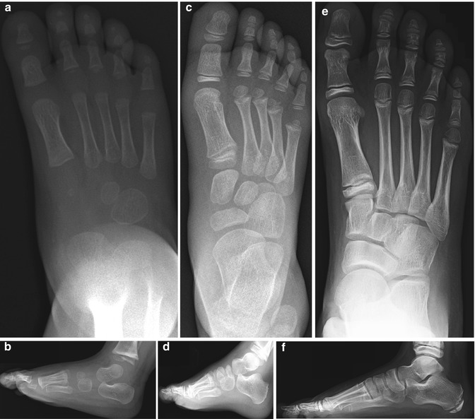 The Foot And Ankle Congenital And Developmental Conditions