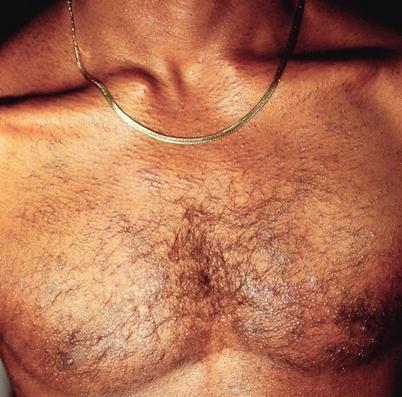 Skin Signs Of Hiv Infection Springerlink