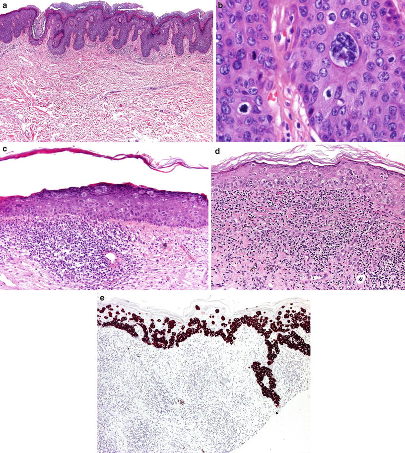 Epidermale Tumoren | SpringerLink