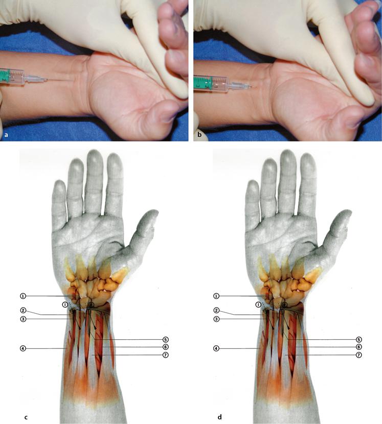 Injektionstechniken am Handgelenk   SpringerLink