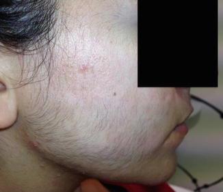 Spironolactone For Facial Hair