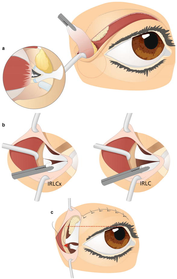 Lateral Canthal Surgery In Blepharoplasty Springerlink