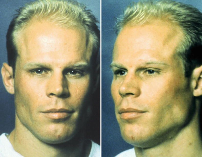 3D Facial Volumization with Anatomic Alloplastic Implants
